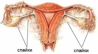 udaleniya-yaichnika-seks